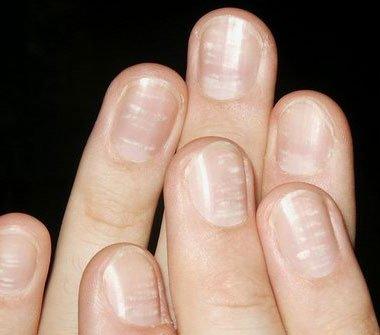 Грибок на ногтях с уплотнением