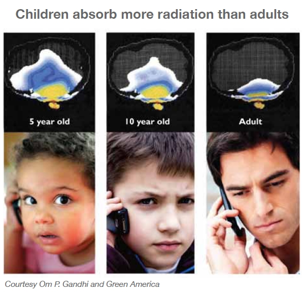 Children-brain-radiation